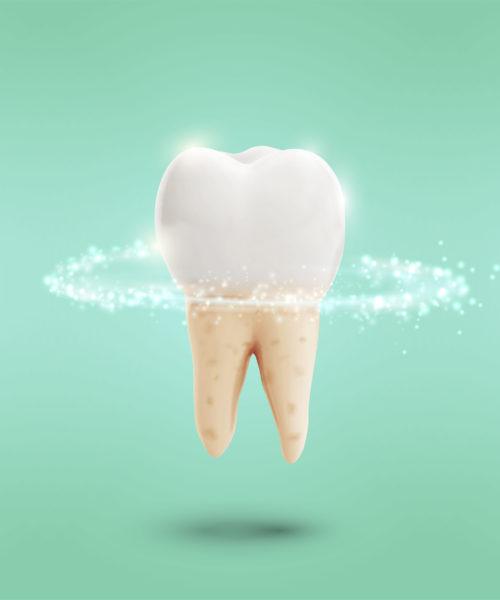 Endodonzia-Poggio